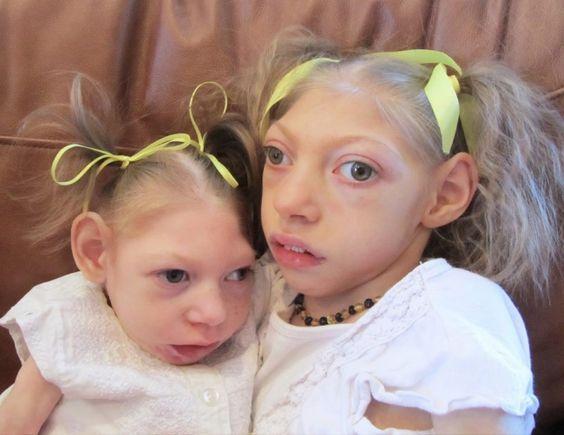 victims of zika virus
